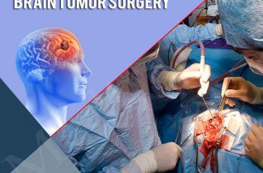brain-tumor-surgery.