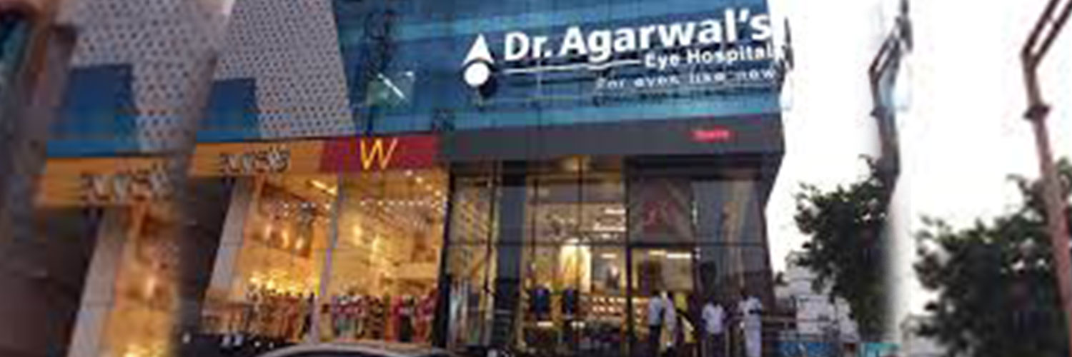 DR. AGARWAL'S EYE HOSPITAL,BENGALURU