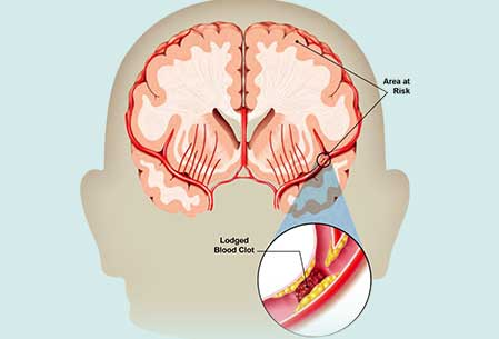 Neurology Treatment In India