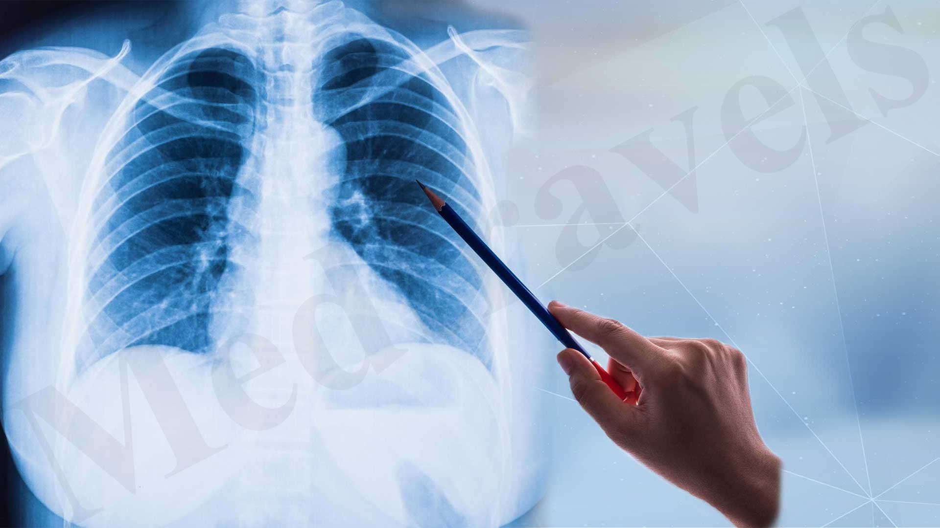 Pulmonology Treatment In India