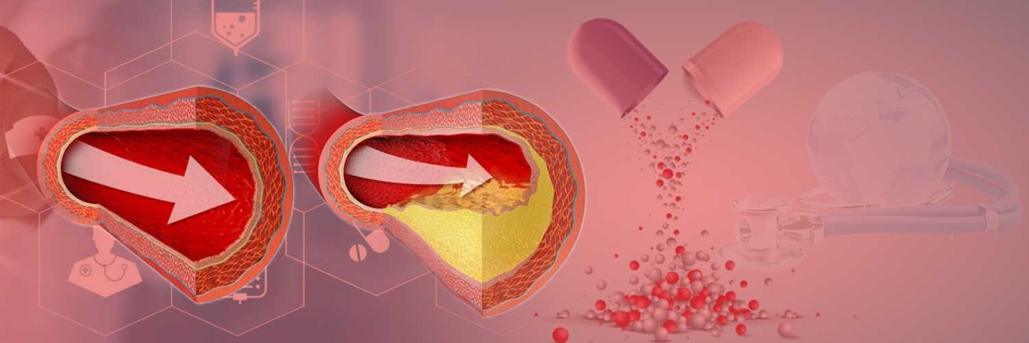 Coronary Artery Disease In India