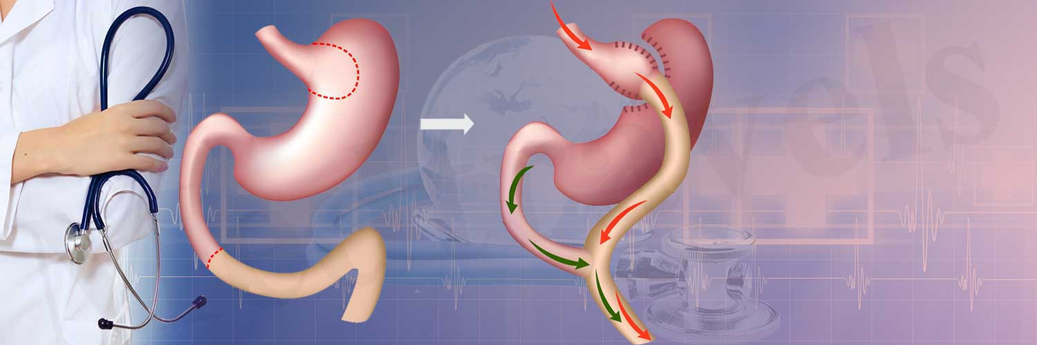 Gastrectomy Surgery In India