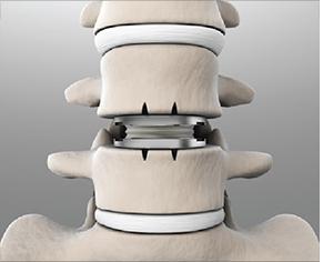 Artificial Spine Lumbar Disc Replacement