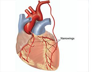 Coronary Artery Bypass Grafting Or CABG
