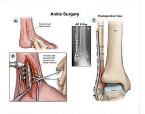 ORIF Surgery
