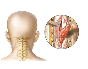 Spine Tumor Surgery