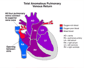 Total Anomalous Pulmonary Venous Return Or TAPVR