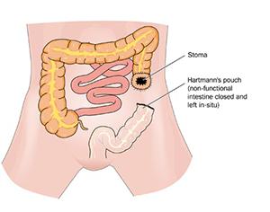 Tumor Excision